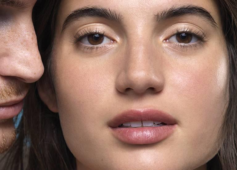 Three acne prone teenagers  portrait