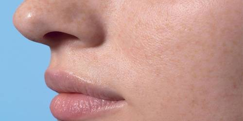 Larocheposay SubCategoryPage Damaged Localised skin damages